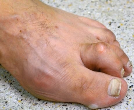 claw toe images